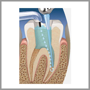 ROOT CANAL DISINFECTION