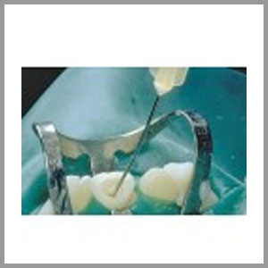 ROOT CANAL IRRIGATION
