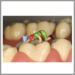 Tooth-Polishing-Paste